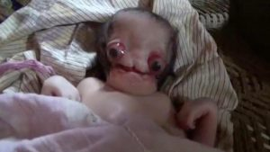 Baby born in India with 'large, red, eyes'