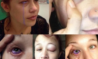 Lady let crying purple tears of agony after eyeball tattoo went wrong