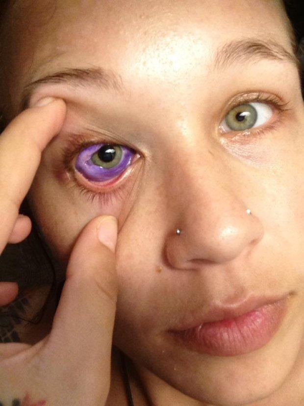 eye pain steroid drops