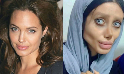 19-Year-Old Girl Undergoes Over 50 Surgical Procedures To Look Like Angelina Jolie