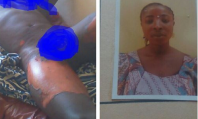 Wife scalds husband with hot water over socks