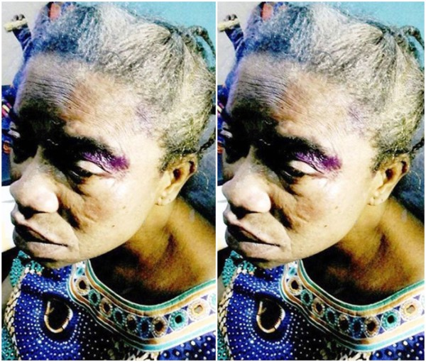 Man Beats Sick Brother's Wife Over Property In Lagos ...