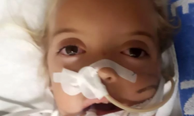 6-Year-Old Bitten On Her Face By Cobra As SheSlept In South Africa