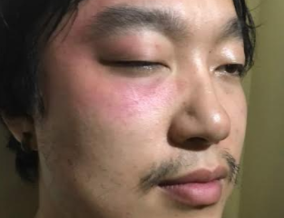Chinese Man Allegedly Detained And Assaulted By Custom Officers In Lagos