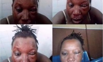 Lady Dating Married Man Cries Out For Help After Getting The Beating Of Her Life
