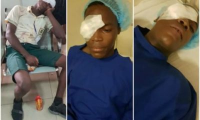 Ojodu Grammar School Student Stabbed In The Eye By Fellow Student