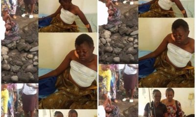 Lady Rescued After Breast And Vulva Were Harvested By Ritualists