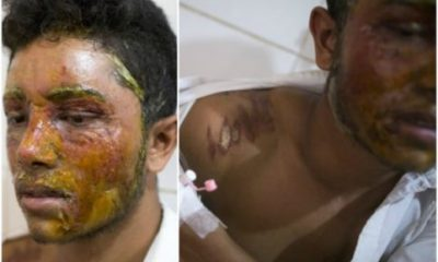 16-Yr-Old Girl Bathes Boy With Acid For Rejecting Her Love Proposal