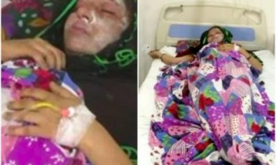 Man Attacks Wife With Acid For Giving Birth To A Baby Girl