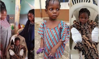 Little Girl Whose Hands Were Burnt By Grandmother Undergoes Surgery