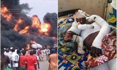 Photo: Injured mother breastfeeds her baby after they survived explosion