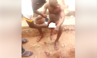 PHOTOS: Man's Joystick Cut Off After He Was Caught Sleeping With A Married Woman