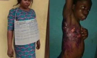 Graphic Photos: Housewife Arrested For Scalding Maid With Hot Water For Sleeping On Her Couch