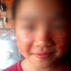 11-Year-Old Begins Sweating Blood As She Revised For Exams (Photos)