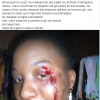 Man Accuses Soldier Of Brutalising His Daughter In Abuja (Photo)