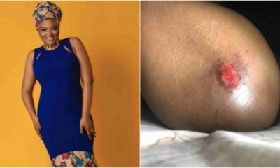 American-Nigerian Lady Odera Brutalised By Police Officers In Lagos