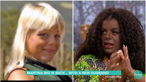 German Woman Who 'Changed Race' Using Melanin Injections Believes She Can Conceive Black Children With White Husband