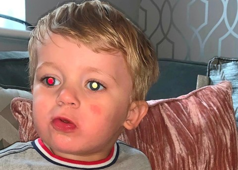 Boy with discolored eyes due to cancer