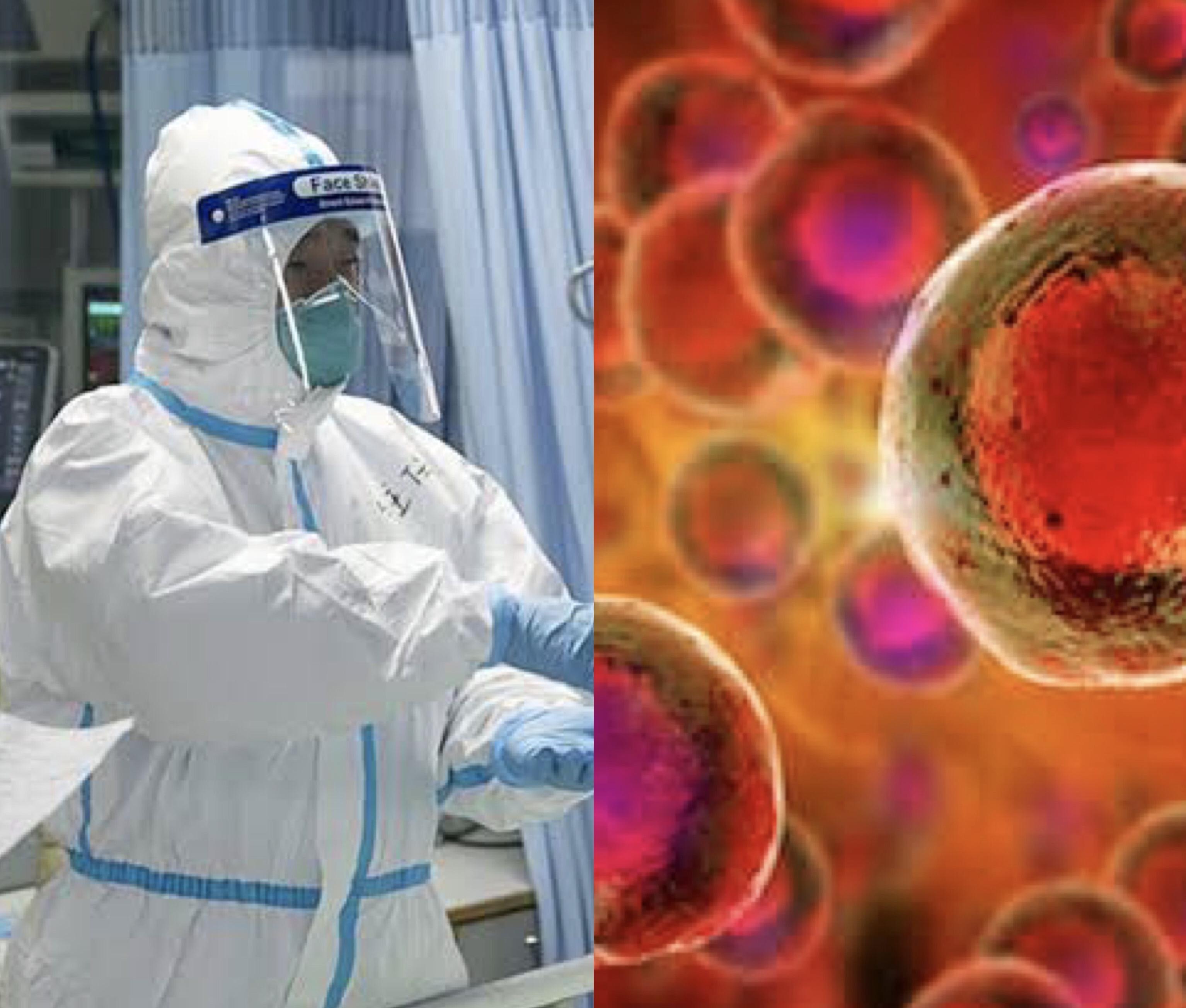 Stem cell treatment for Coronavirus