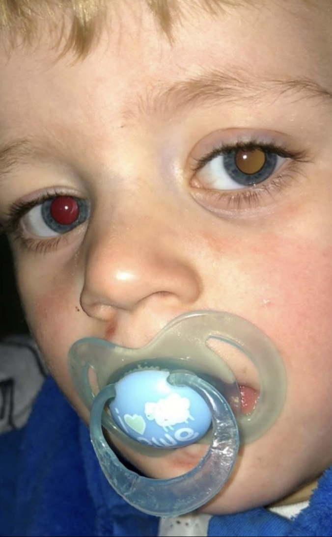 Frankie, boy with discolored eyes due to rare and aggressive cancer