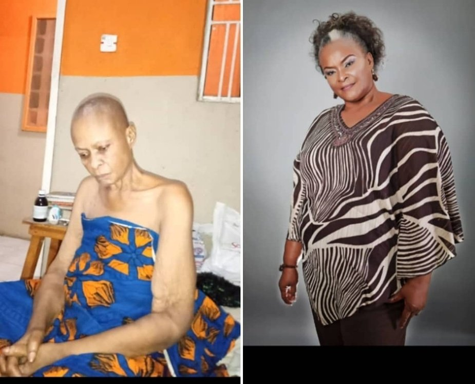 Ify Onwuemene battling cancer